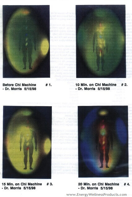 Kirlian Photography Showing Improved Energy From The Chi Machine